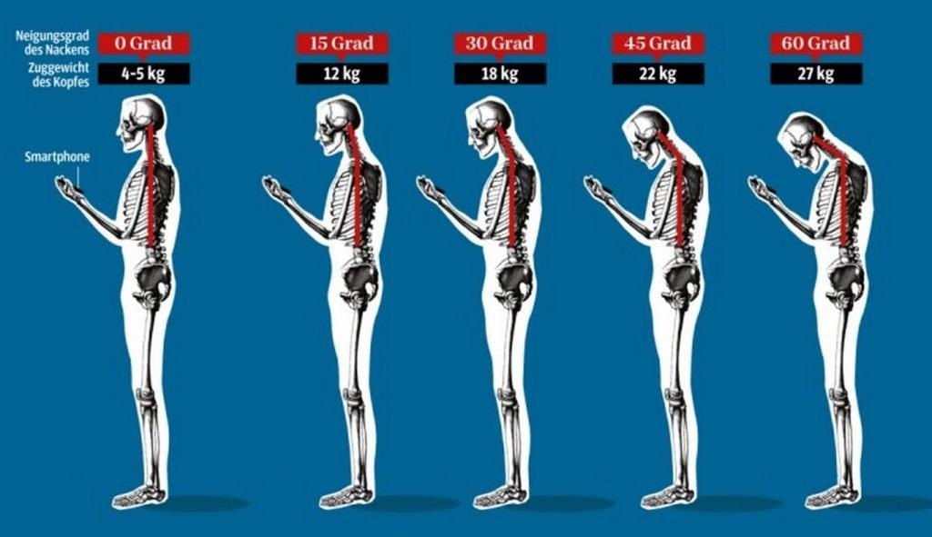 Ärzte warnen vor iPhone Nacken! screenshot 141123 162741 1024x591