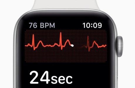 Deutscher Herzspezialist lobt Apple Watch EKG 3