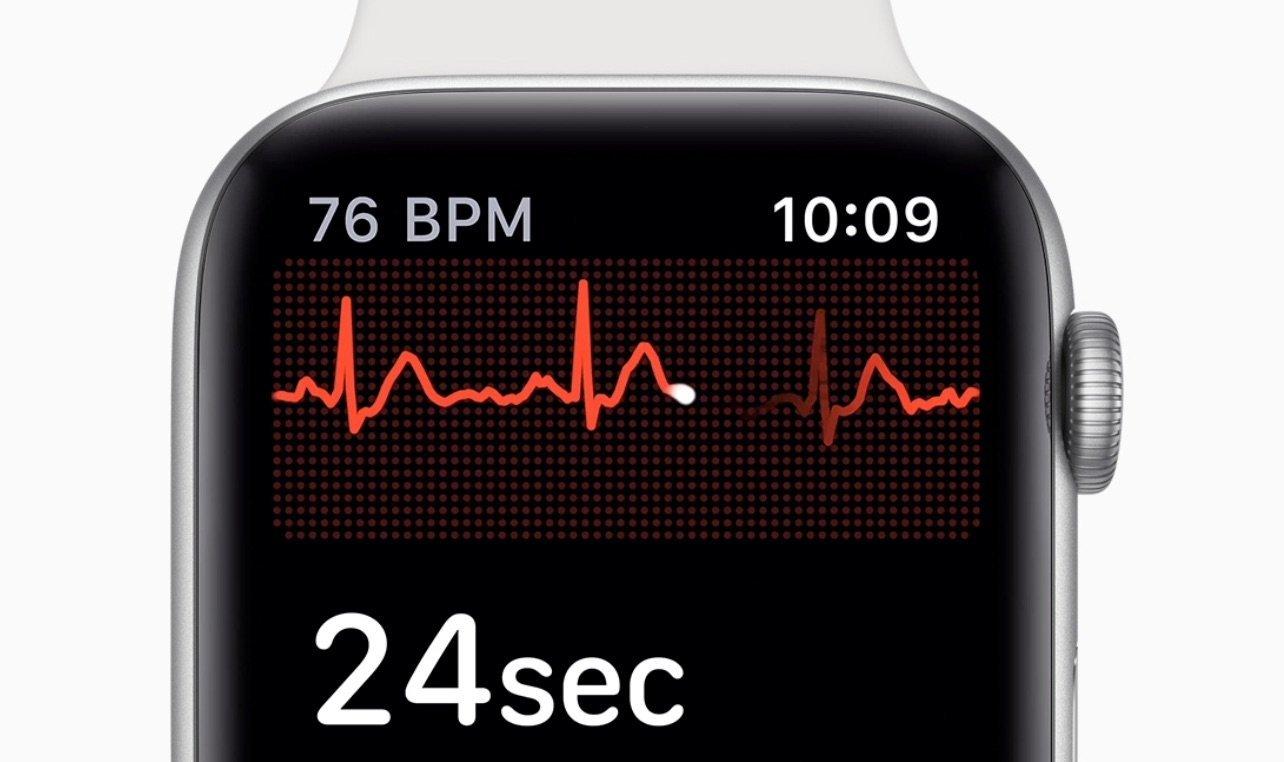 Apple Watch Series 4: EKG-Funktion soll bald in Kanada verfügbar sein 1